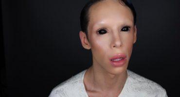 Vinny Ohh: el sujeto que se hace cirugías para ser