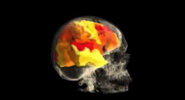 Así se ve tu cerebro cuando experimentas un orgasmo