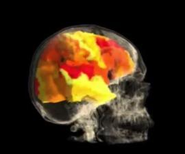 Orgasmo - Cerebro