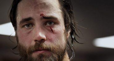 Escalofriantes imágenes del corte en el rostro de un jugador de hockey
