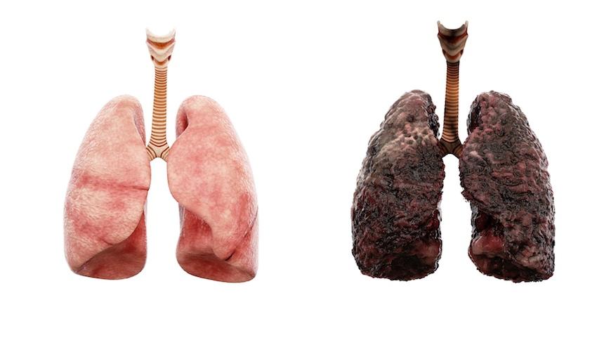 Los efectos del cigarro en los pulmones