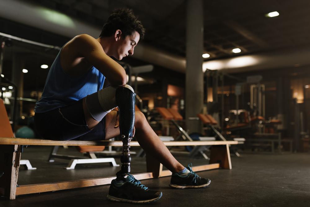 Mexicanos crean prótesis biónica de bajo costo