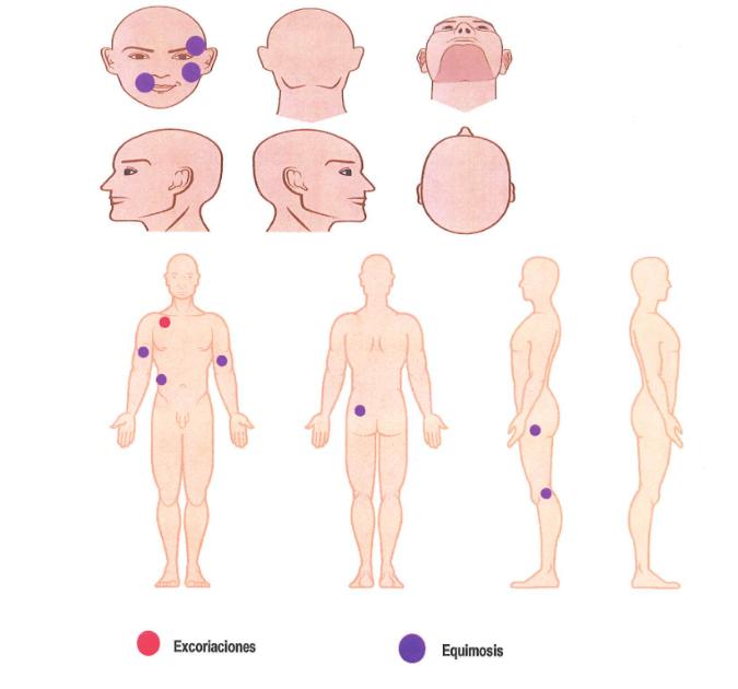 lesiones en el cuerpo de la víctima CNDH
