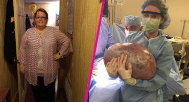 WTF?! Sacan de una mujer un quiste de 22 kilos 😰