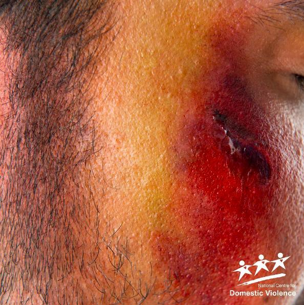 Triste: Cuando Inglaterra pierde, la violencia doméstica aumenta