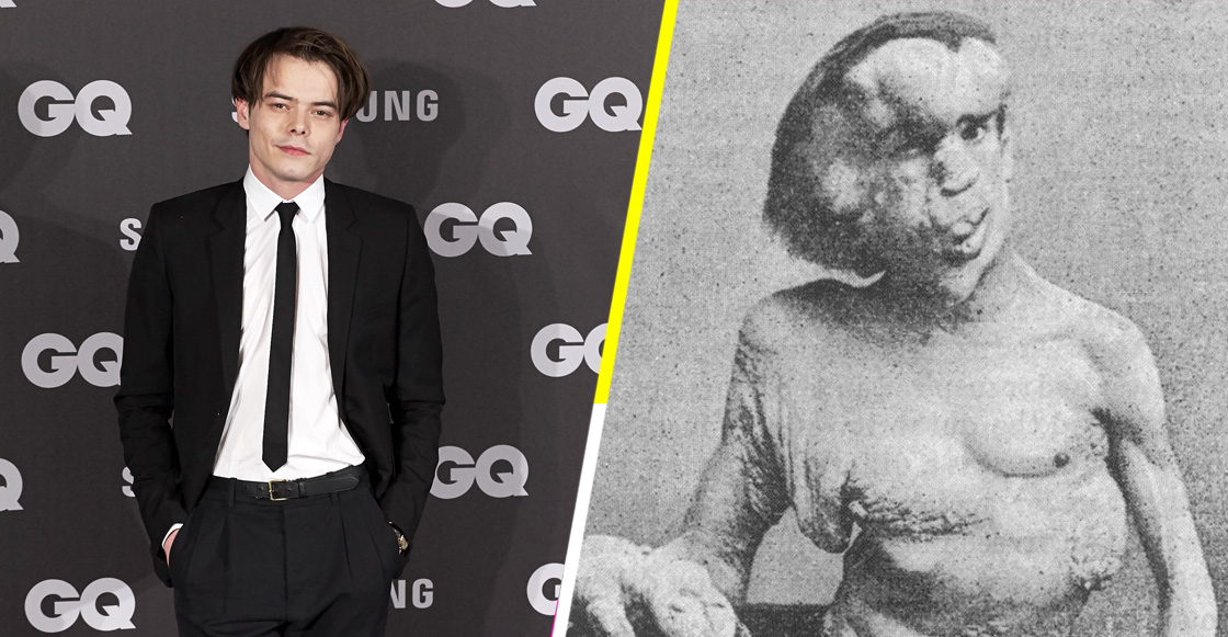 Critican a la BBC por no contratar a un actor discapacitado para 'The Elephant Man'
