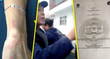 Denuncian a policías de Coacalco por violencia y agresiones homofóbicas