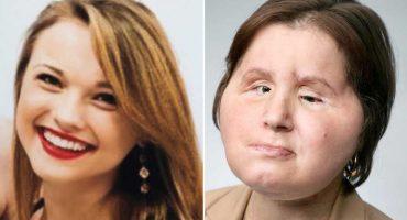 ¿Quién es Katie Stubblefield y cómo lucía antes del transplante de rostro?