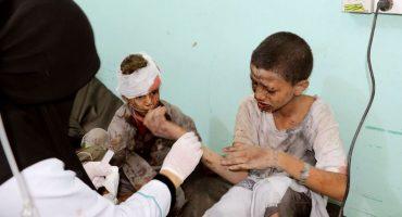 Al menos 29 niños muertos por ataque a un autobús en Yemen