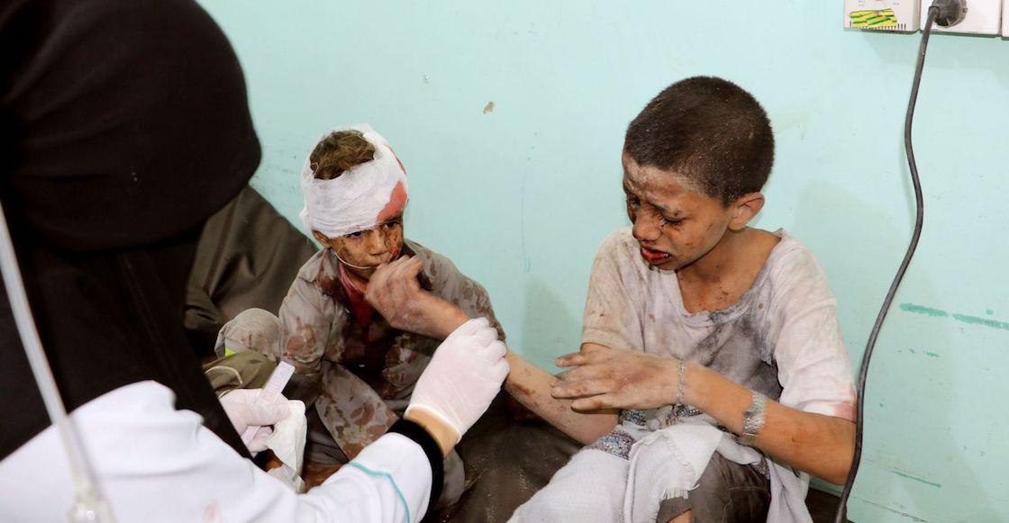 yemen-autobus-niños-heridos-arabia