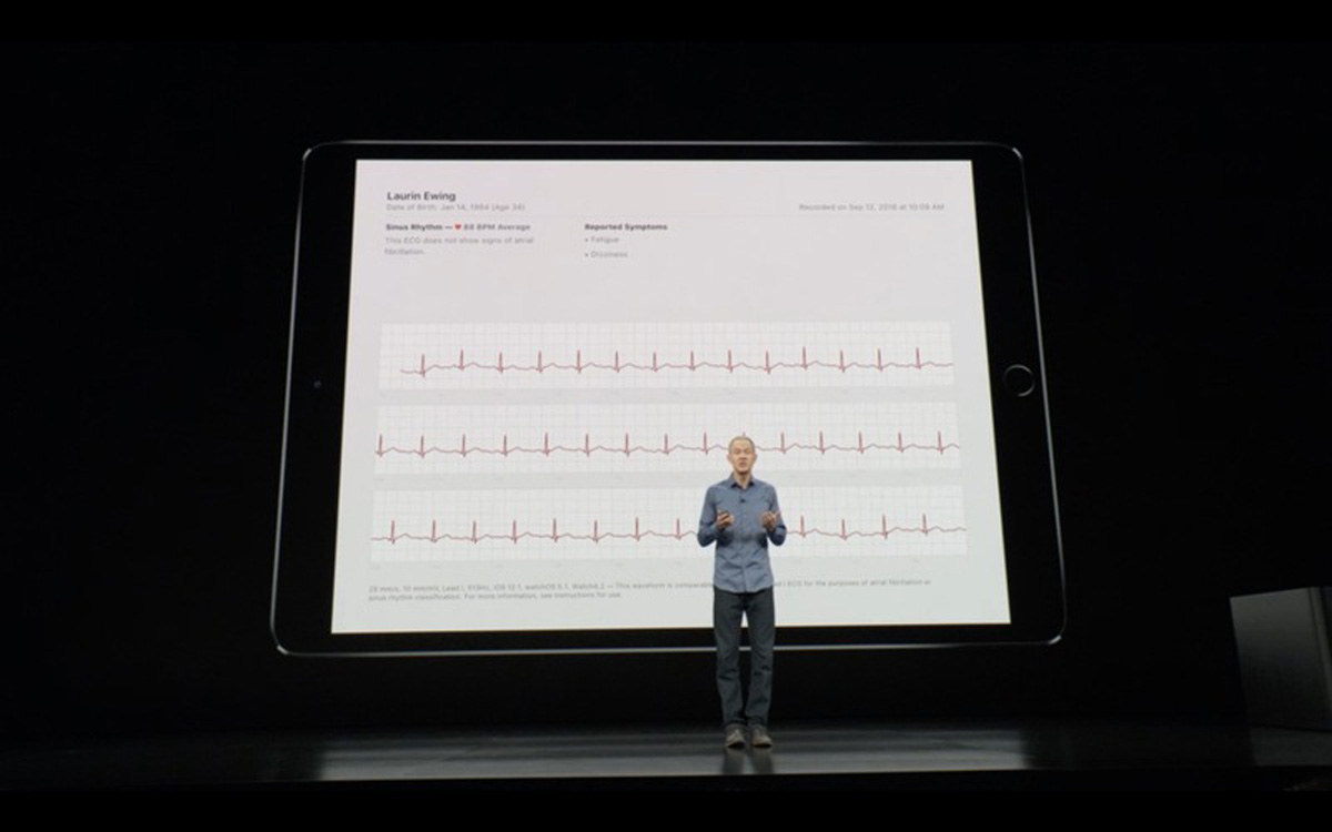Apple Watch 4 te puedes hacer un electrocardiograma