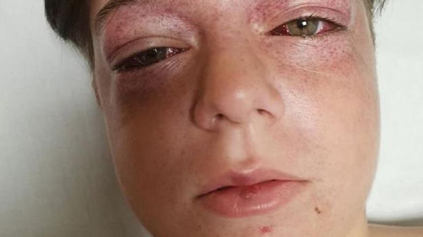 Roundabout to Death – Reto viral que casi mata a un niño