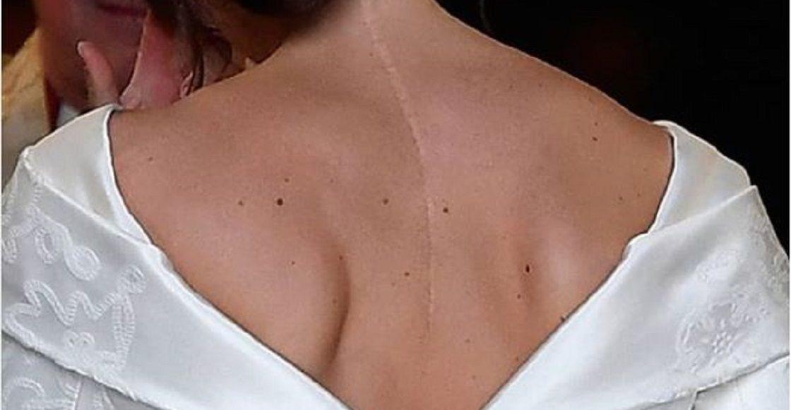 Eugenia York - Cicatriz de escoliosis
