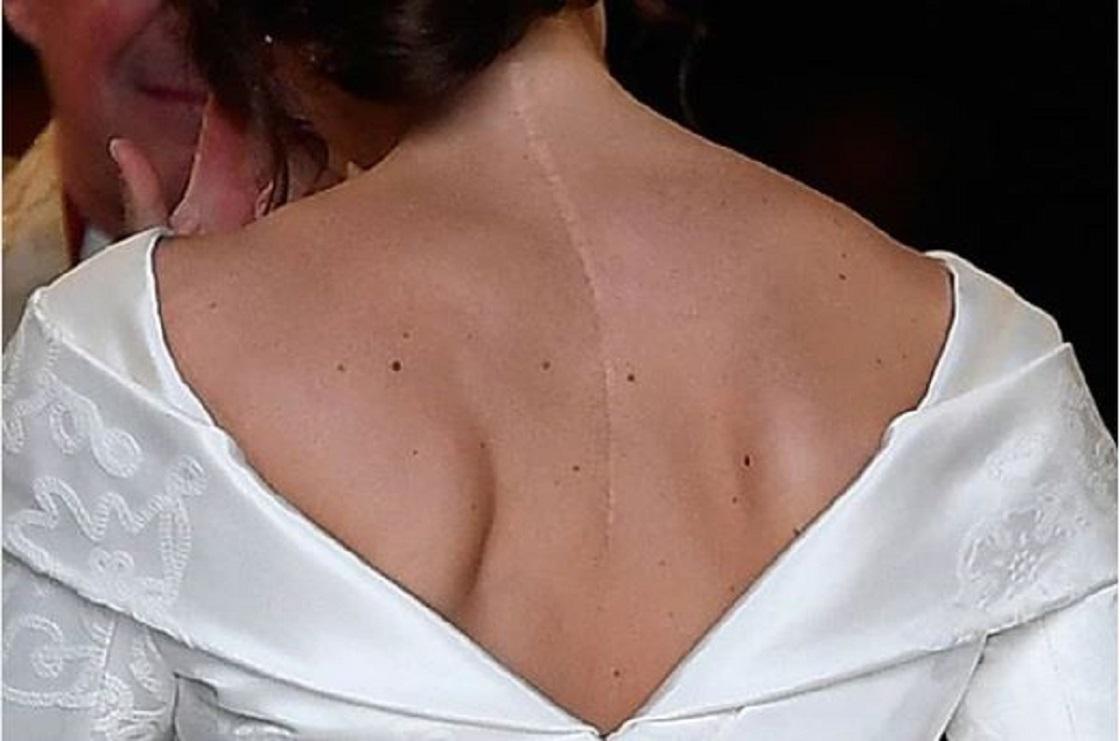 Eugenia de York dejó a la vista su cicatriz durante su boda