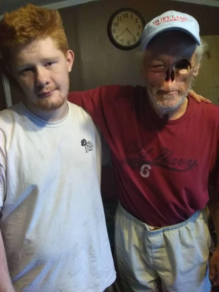 Corren de tienda a sobreviviente de cáncer por no tener nariz ni un ojo