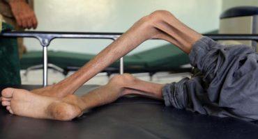 'Yemen es un infierno en vida para niños y niñas': Unicef
