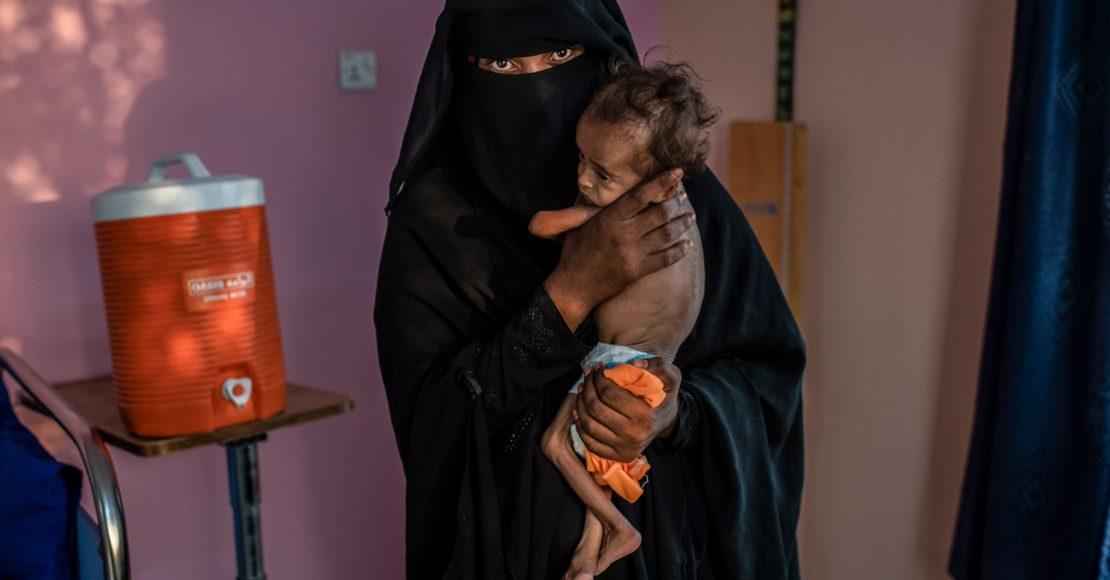 Han muerto de hambre casi 85 mil niños por conflicto en Yemen: Save The Children