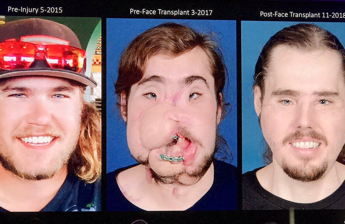 El antes y después del transplante de rostro más avanzado del mundo