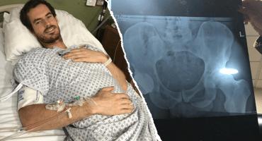 Murray compartió la radiografía de su nueva cadera… y de su pene 🙊