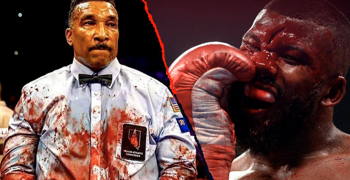 ¡Lluvia de sangre! El impactante corte que sufrió Badou Jack en su pelea de box