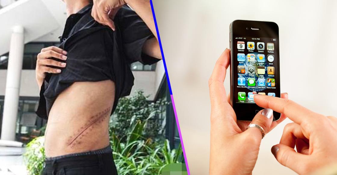 Conoce la historia del joven que vendió su riñón para comprar un iPhone y un iPad
