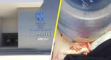 México Mágico: Usan garrafón como 'incubadora' en un hospital de Sonora