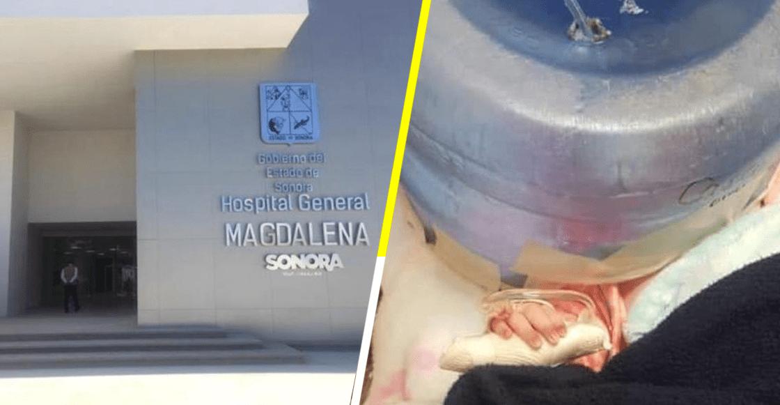 México Mágico: usan garrafón como incubadora en un hospital de Sonora