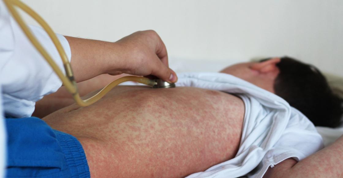 Se reporta un brote de sarampión en Costa Rica más de 10 años después: Un niño francés el sospechoso