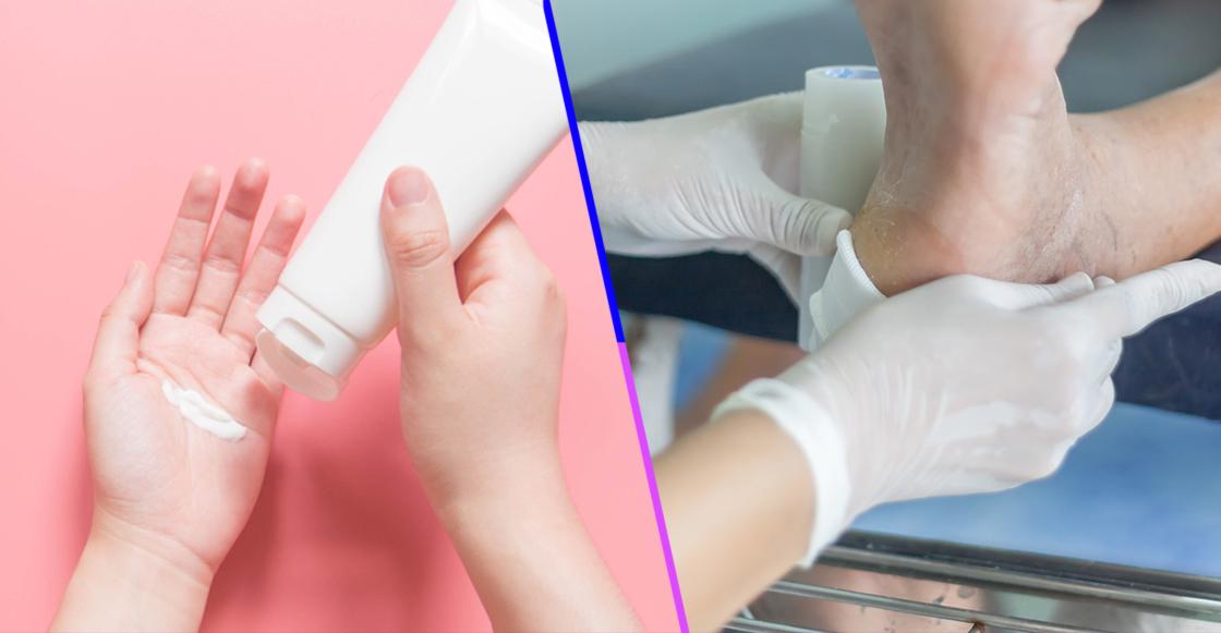 ¡Orgullo Nacional! Mexicanos crearon crema para cicatrizar heridas de diabéticos