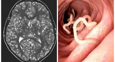 Un joven murió debido a que tenía una plaga de gusanos en el cerebro