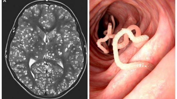 Gusanos habitando el cerebro de un paciente en la India