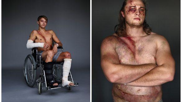 Hombres que sobrevivieron a choques automovilísticos