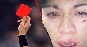 Por expulsar a un jugador, golpearon a árbitro mujer en una liga amateur