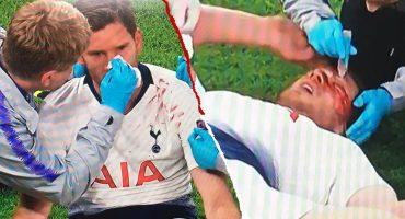 En imágenes: El 'sangriento' golpe de Vertonghen con Alderweireld en la Champions