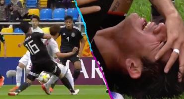 ¡Ouch! La terrible lesión de Roberto Meráz en el Mundial Sub-20