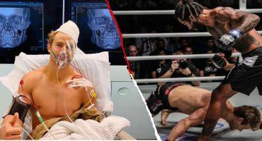 Peleador recibió brutal KO que casi termina con su vida: 8 fracturas y 9 horas en operación