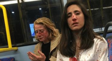 En Londres, una pareja de mujeres es golpeada en un ataque homofóbico
