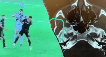 El codazo de Ibrahimovic que le costaría una fuerte sanción en la MLS