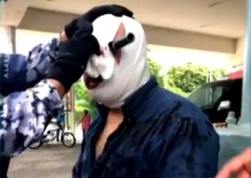 Hombre es acuchillado en el ojo... todo por un lugar de estacionamiento en Veracruz