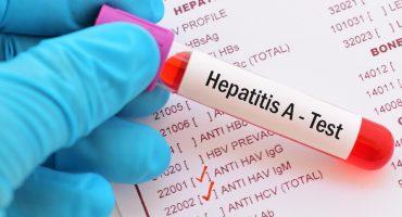 Florida declara estado de emergencia de salud pública por brote de hepatitis A