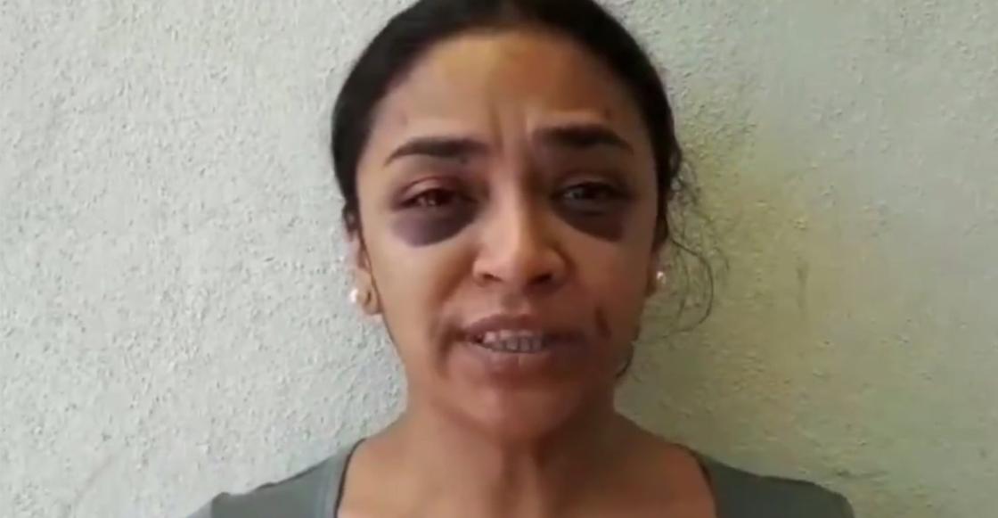 Mitzi es una reportera que denunció un intento de violación y terminó golpeada por la policía