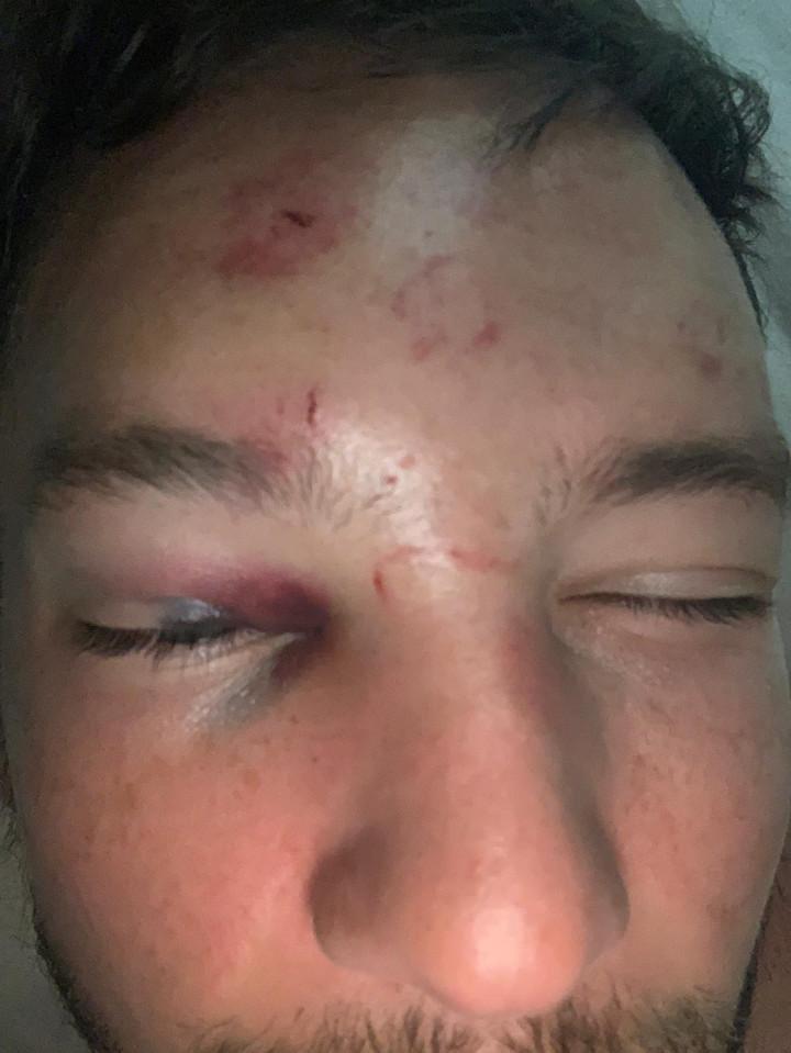 Seis personas golpearon brutalmente a Danny Drinkwater por acosar a la novia de otro futbolista
