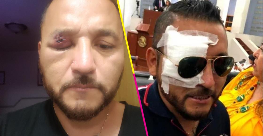 """""""El Mijis"""" fue atacado a pedradas al salir del Congreso de San Luis Potosí"""