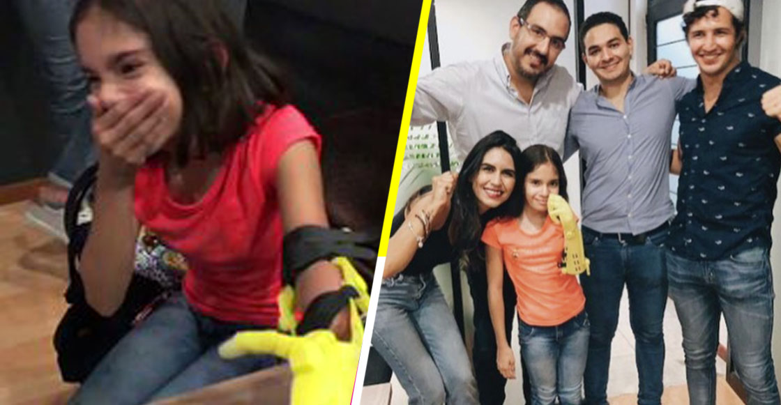 Conoce el proyecto mexicano que está haciendo prótesis de bajo costo para niños