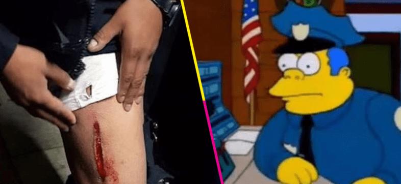 policía-herido-bala-pistola-cdmx