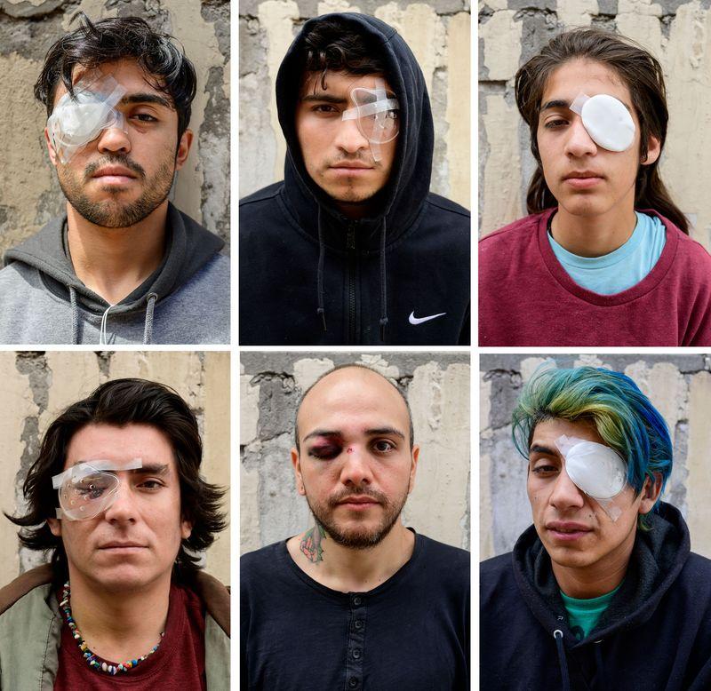 chile-policia-ojos-manifestantes-protesta-ciego-pinera-derechos-humanos-02