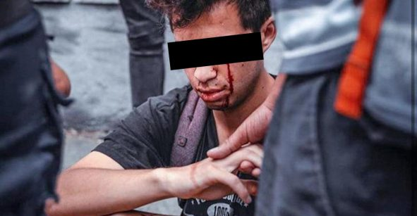 Apuntan a los ojos: La policía de Chile deja ciegos a los manifestantes