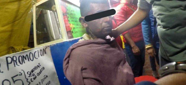 Hombre que se niega a pagar tortas en Iztapalapa, rocía gasolina y prende fuego a vendedor