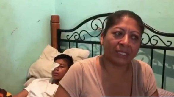 Niño de Chiapas es golpeado por sus compañeros; podría quedar ciego si no paga una operación de 55 mil pesos