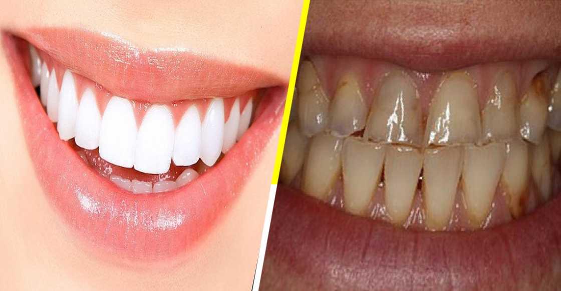 Dentista muestra cómo las bebidas alcohólicas destruyen los dientes